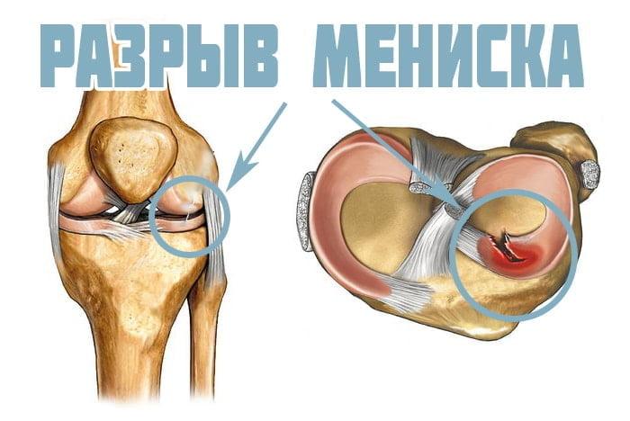 Результат по лечению травма колена с разрывом менисков