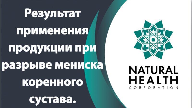 Результат применения продукции Natural health при разрыве мениска коренного сустава.